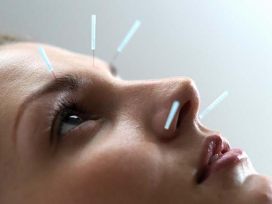 Курсы рефлексотерапии для врачей